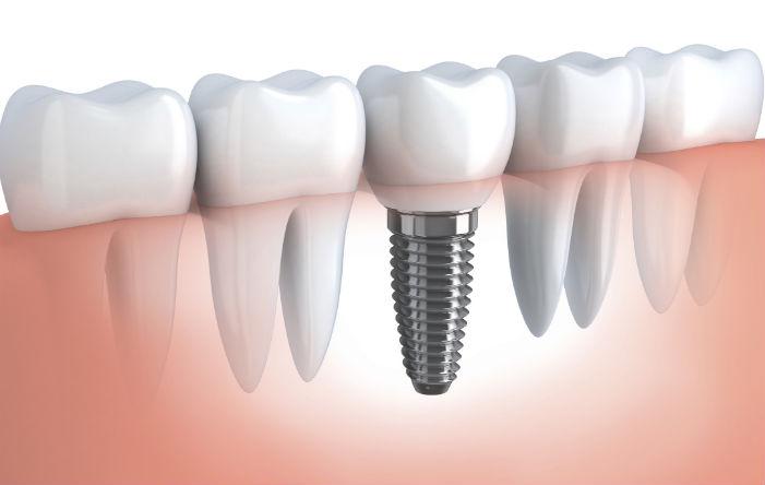 Implantodontia: Implante Dentário