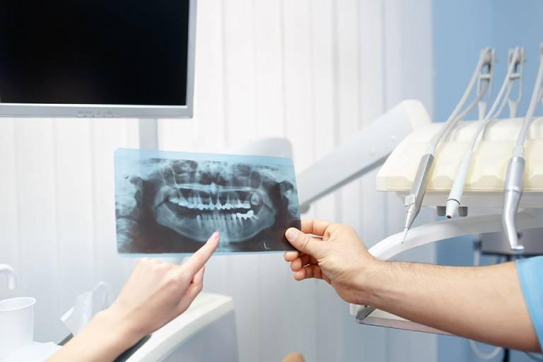 Tratamento Ortodôntico: Como saber se preciso de um ortodontista?