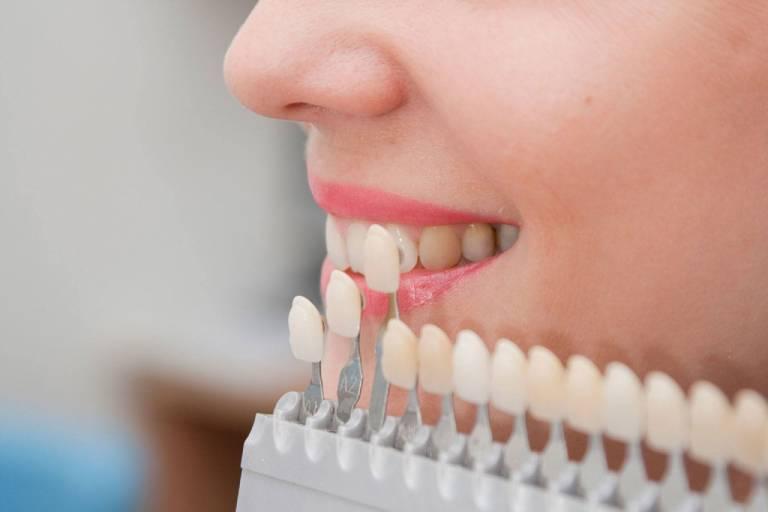 Facetas de Porcelana x Lentes de Contato Dentais: Como deixar meus dentes mais bonitos?