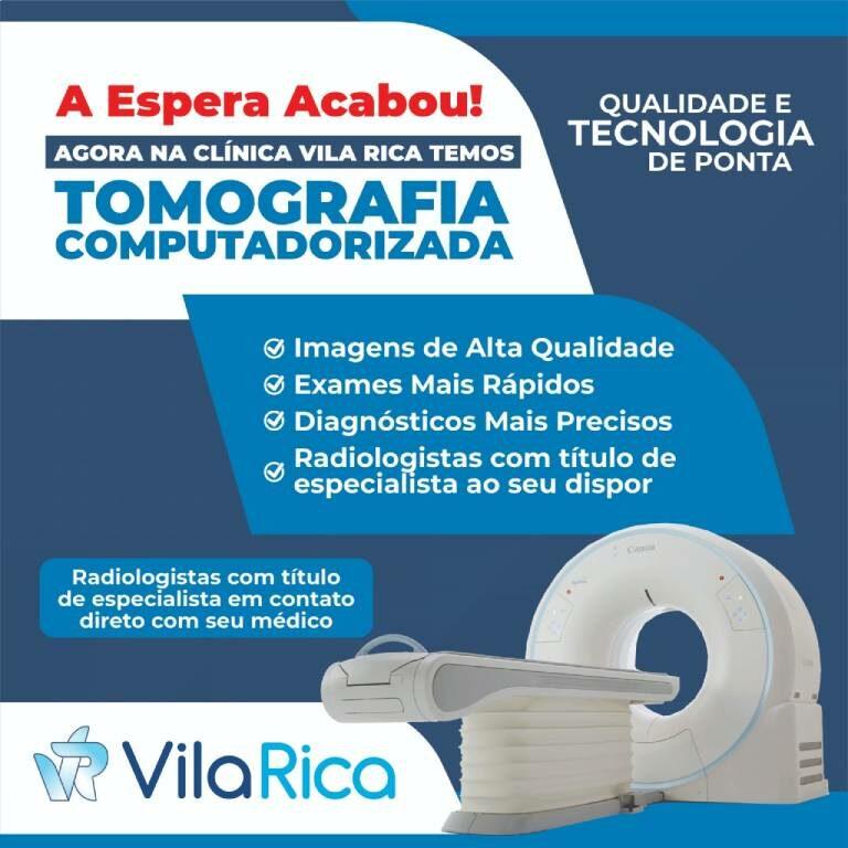 Faça sua tomografia computadorizada na Clínica Vila Rica